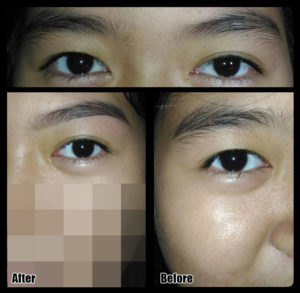 Eyebrow Reshaping